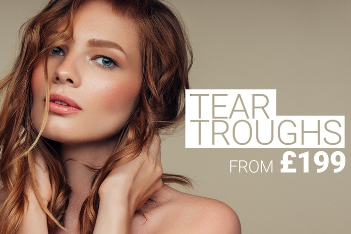 Tear trough injection with dermal filler