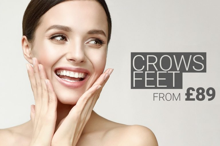 Crow's Feet Treatment