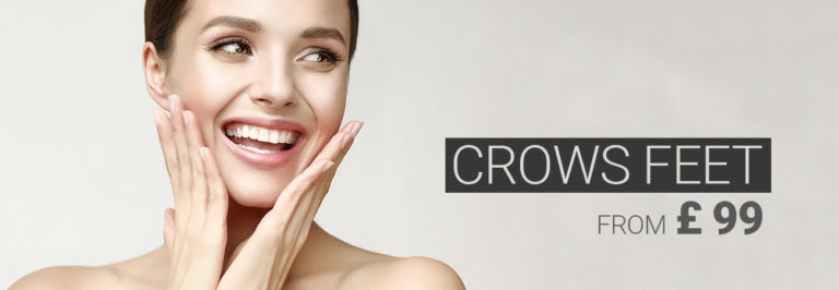 Smiling model with bright eyes, crow's feed treatment with anti-wrinkle injections from £ 89.