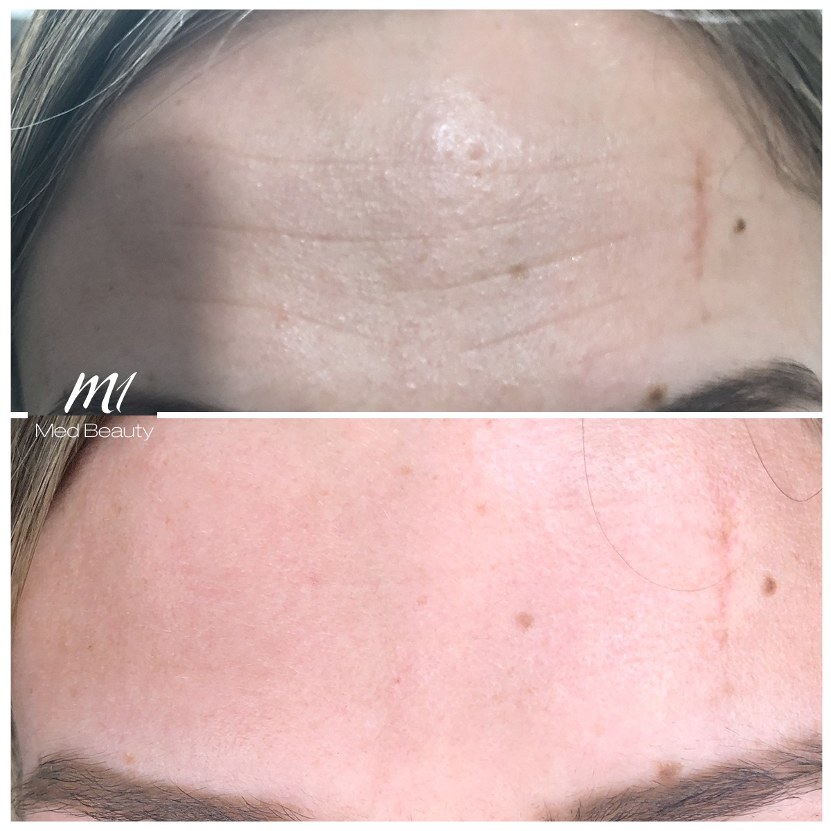 wrinkle treatment of forehead lines with muscle relaxant at M1 Med Beauty