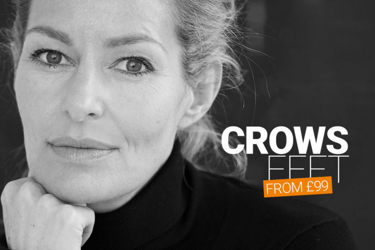 crow's feed treatment with anti-wrinkle injections at M1 Med Beauty