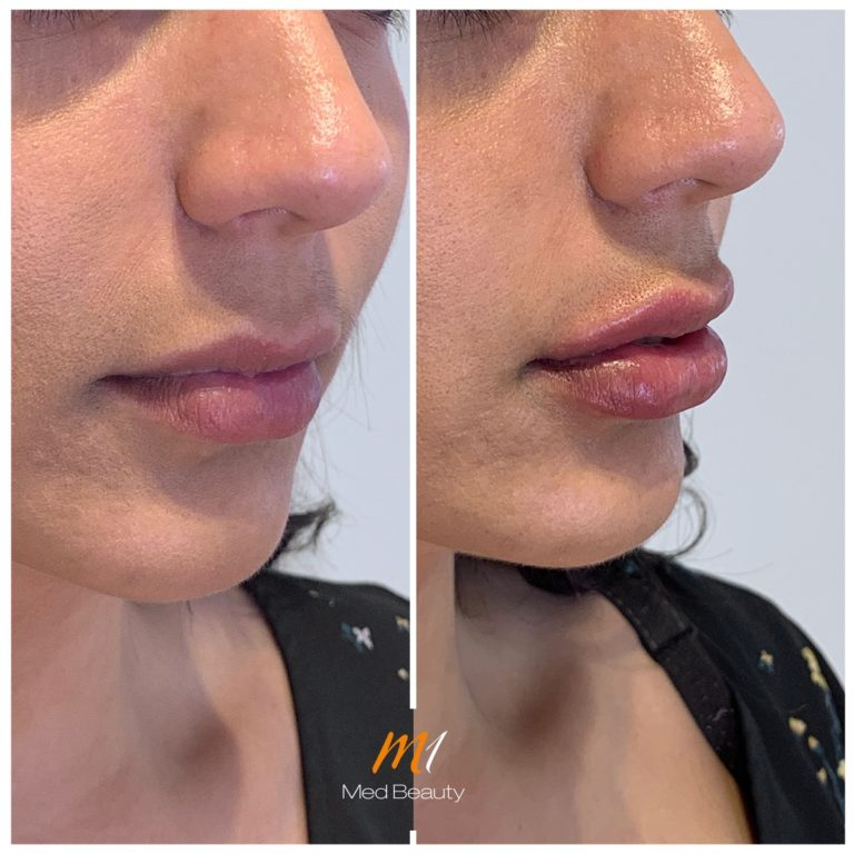 Lip fillers at M1 Med Beauty before and after 10