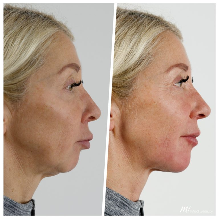 Jawline fillers and chin correction at M1 Med Beauty before and after 04