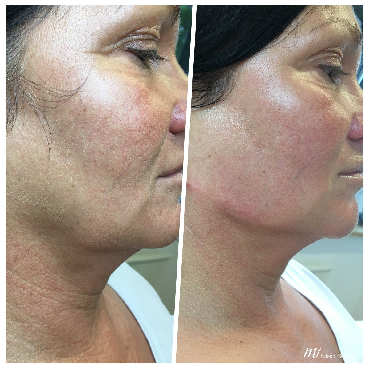 Jawline fillers at M1 Med Beauty before and after 05