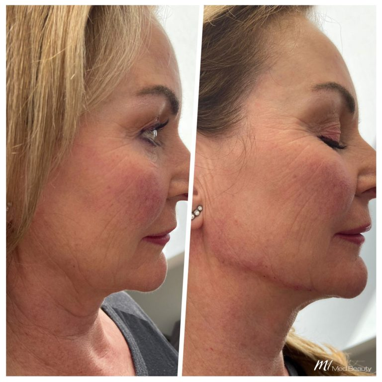 Jawline fillers and chin correction at M1 Med Beauty before and after 03