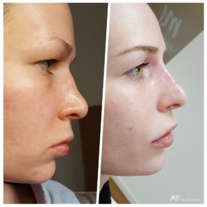non-surgical rhinoplasty_before after result_m1 med beauty_04
