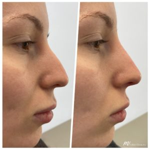 non-surgical rhinoplasty_before after result_m1 med beauty_03