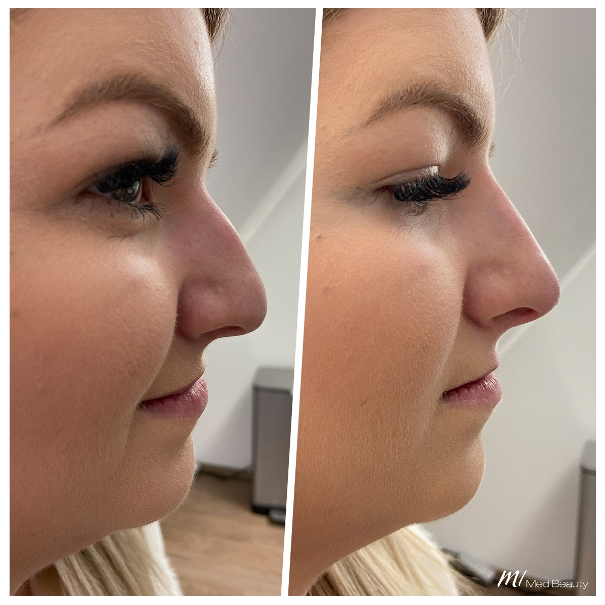 non-surgical rhinoplasty_before after result_m1 med beauty_02