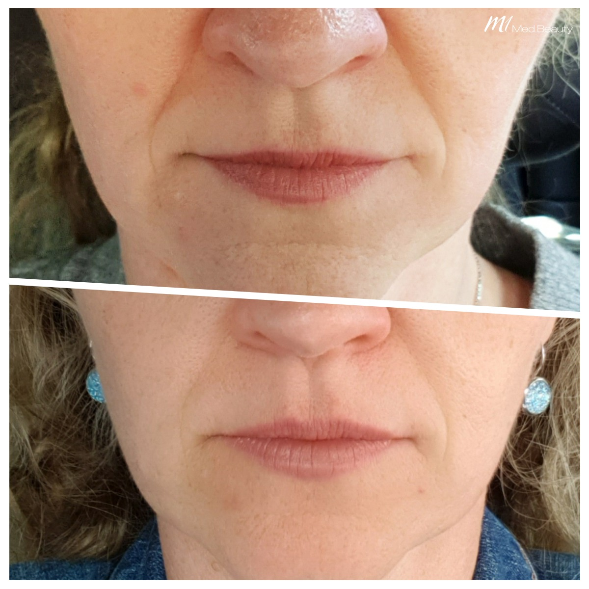 Nasolabial folds treatment with dermal filler at M1 Med Beauty before and after_02