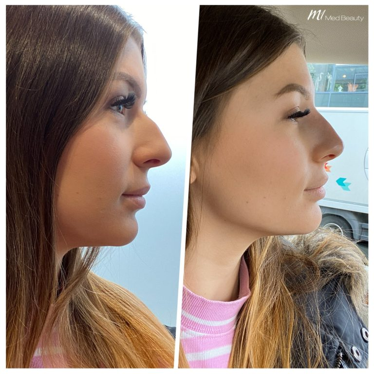 non-surgical rhinoplasty_before after result_m1 med beauty_09