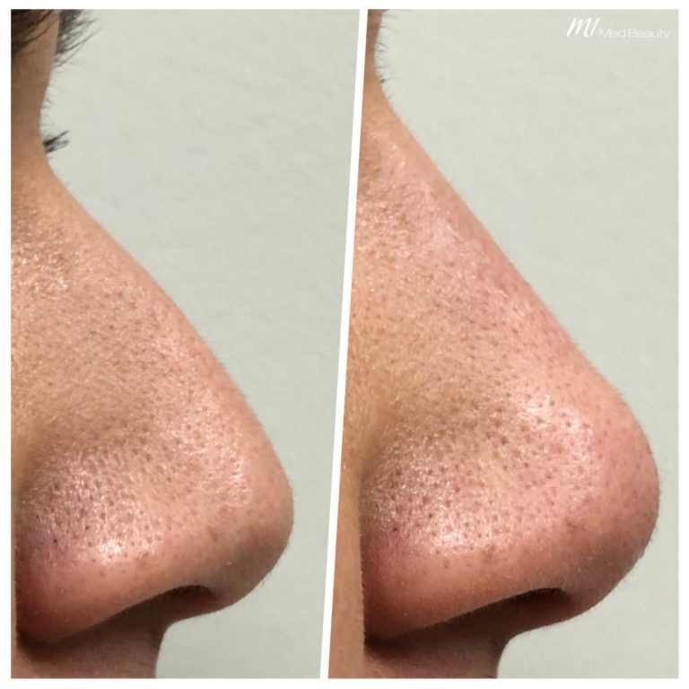 non-surgical rhinoplasty_before after result_m1 med beauty_01