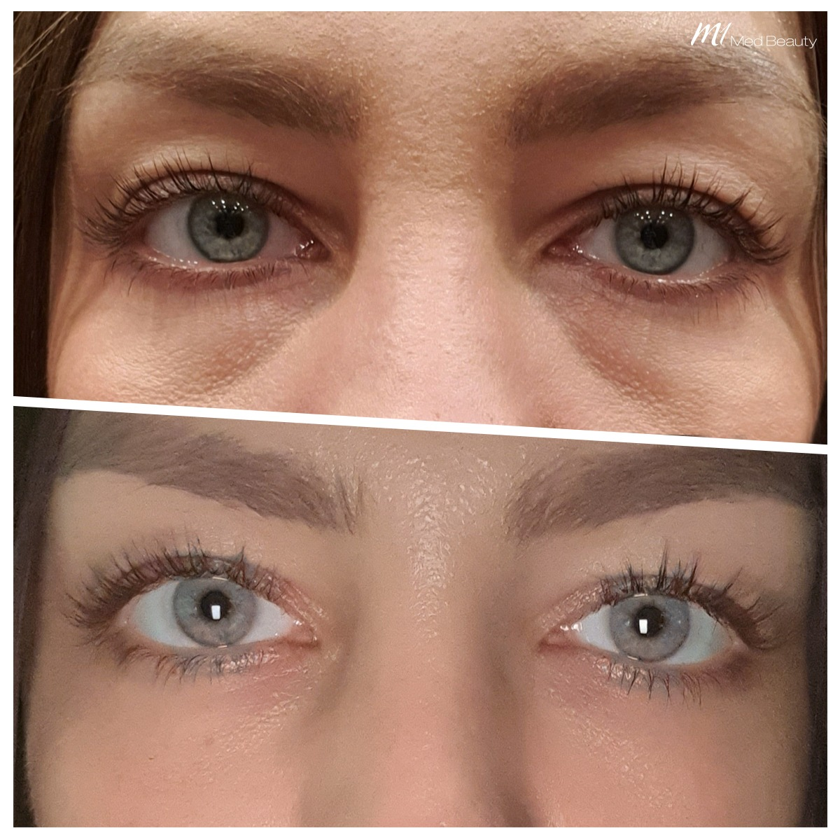 Tear trough treatment at M1 Med Beauty before and after_02