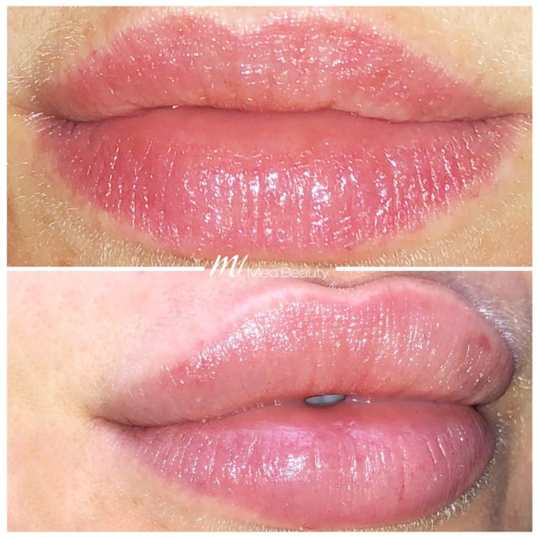 Lip fillers at M1 Med Beauty before and after 05