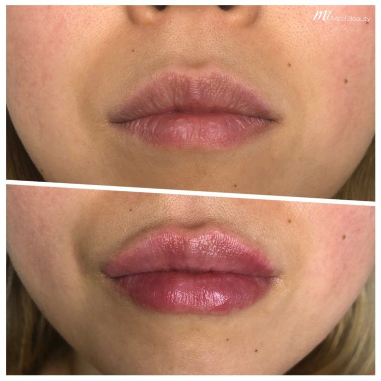 Lip fillers at M1 Med Beauty before and after 09