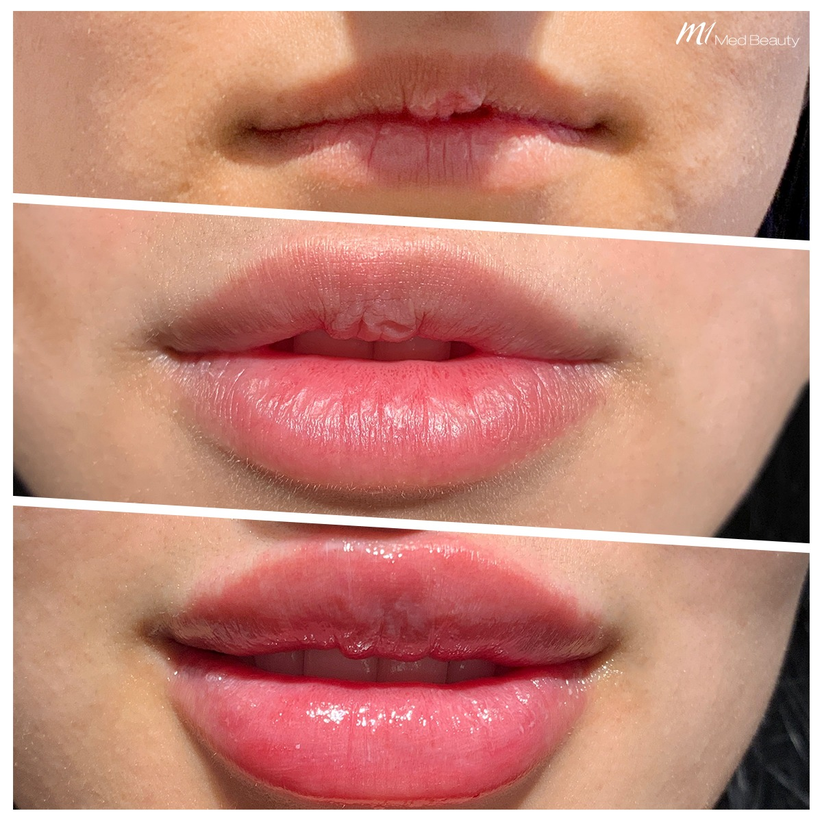 Lip fillers at M1 Med Beauty before and after 02