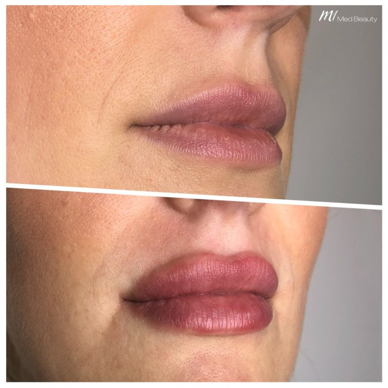Lip fillers at M1 Med Beauty before and after 07