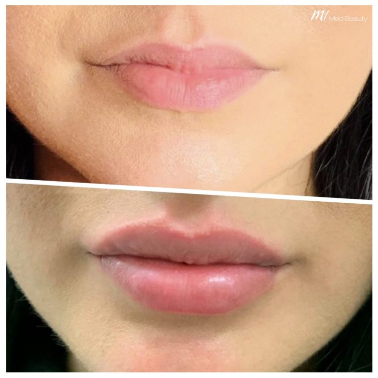 Lip fillers at M1 Med Beauty before and after 01