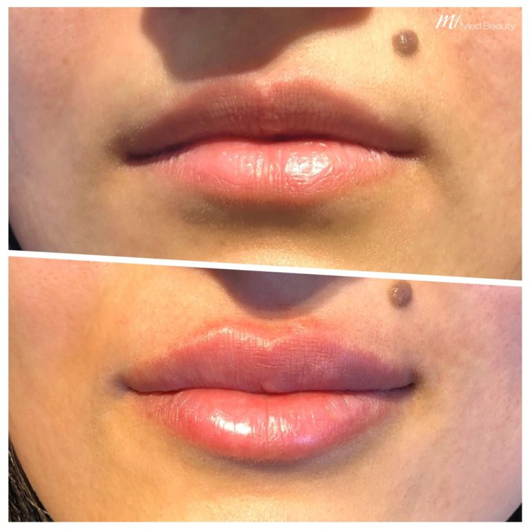 Lip fillers at M1 Med Beauty before and after 03