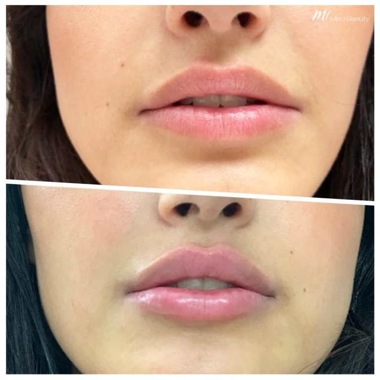 Lip fillers at M1 Med Beauty before and after 04