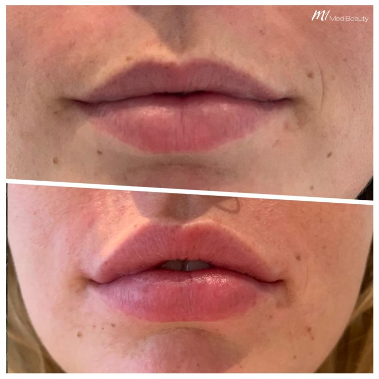 Lip fillers at M1 Med Beauty before and after 06