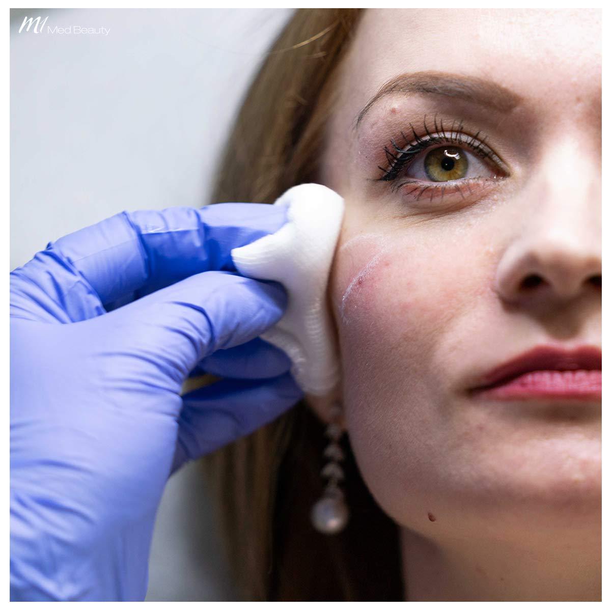 cheek filler treatment at M1 Med Beauty - before