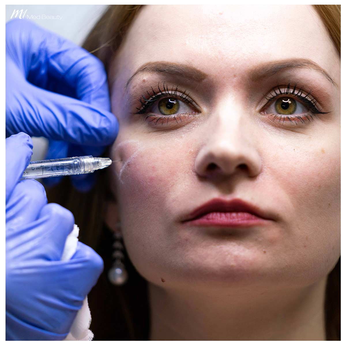 cheek filler treatment at M1 Med Beauty- injection