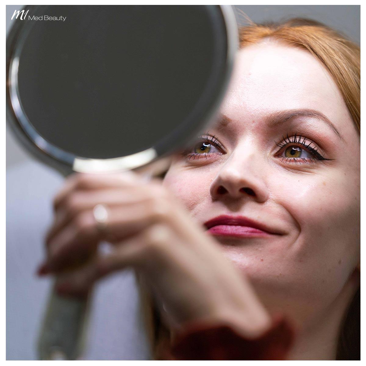 cheek filler treatment at M1 Med Beauty - after