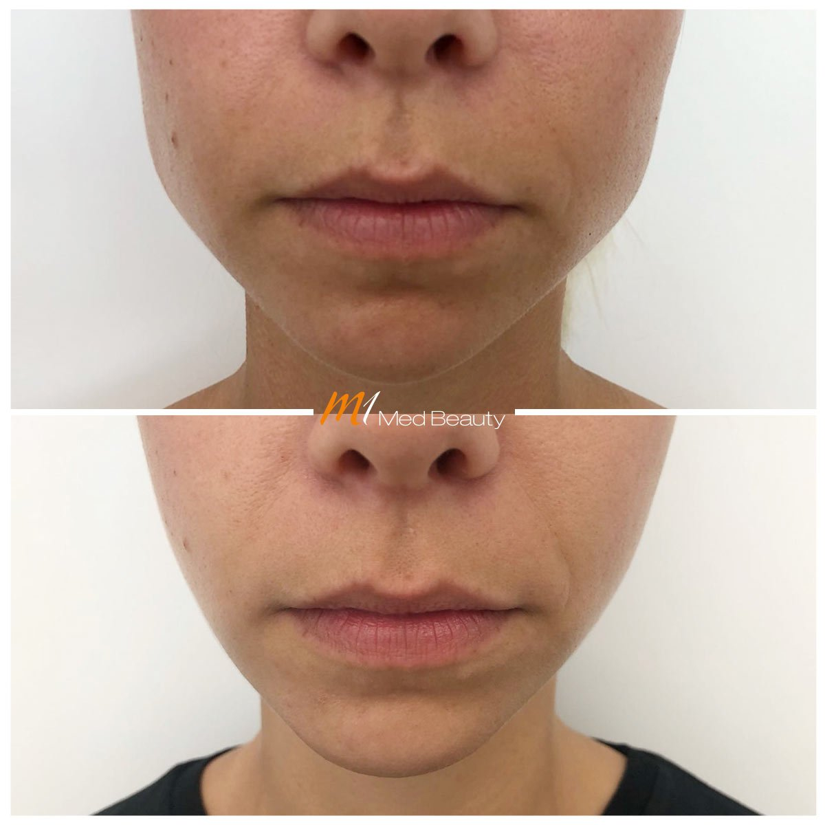 facial slimming with muscle relaxans at M1 Med Beauty