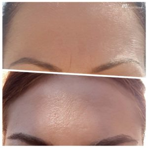 frown lines treatment at M1 Med Beauty - before after results