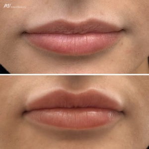 lip fillers before after image 1