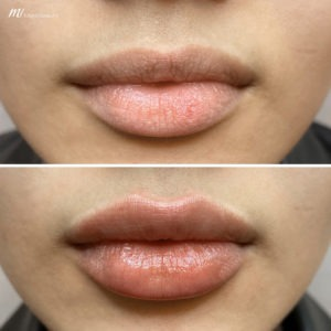 lip fillers before after image 2
