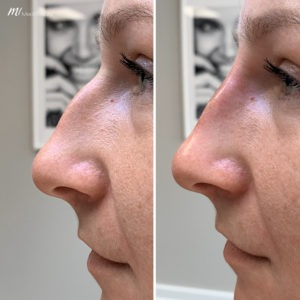 rhinoplasty filler before after image