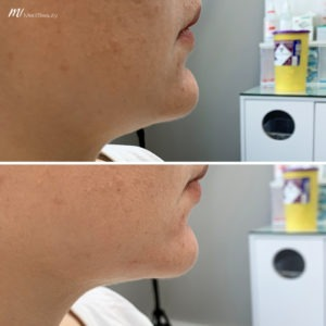 chin filler before after image