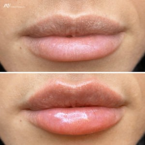 lip fillers before after image 4